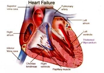 obat gagal jantung kongestif